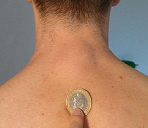 жировик размером с монету