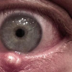 жировик на нижнем веке глаза