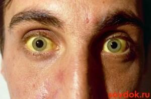 жёлтые склеры при гепатите